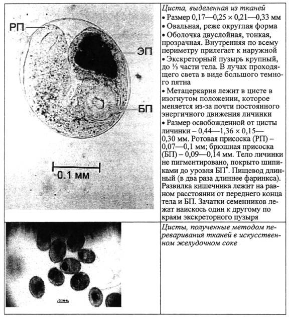 Метацеркарий фото
